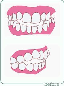 きさらぎ矯正歯科医院診療案内前歯が噛み合わない 開咬三重県