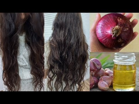 JUST 1 Ingredient *Regrow Hair From The Roots* Just Apply This To Your