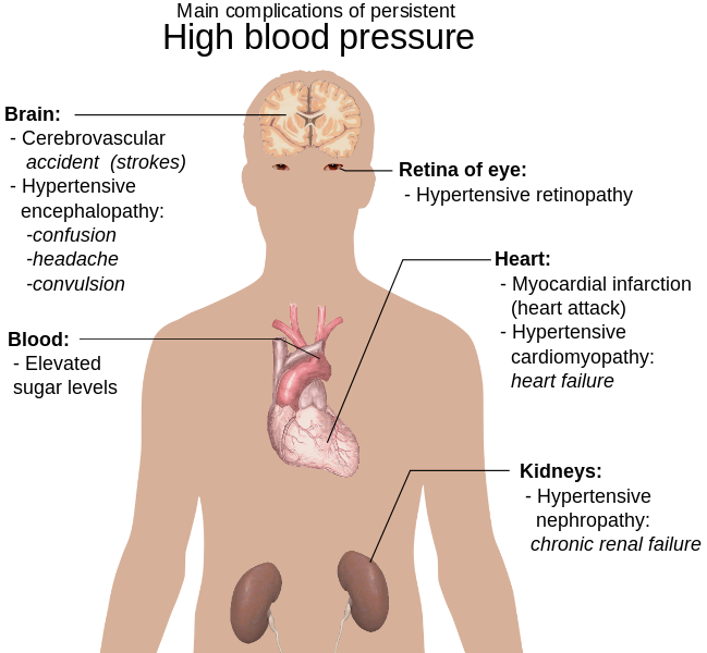 File:Main complications of persistent high blood pressure.svg