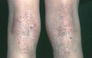 eczema on backs of knees