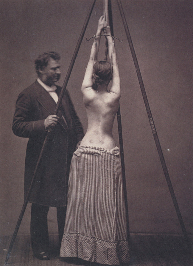 4. Dr. Lewis Sayre medicine treats scoliosis, retro, photo