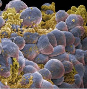 Las células madre pluripotentes pueden desarrollar mutaciones que favorecen la producción de células cancerosas