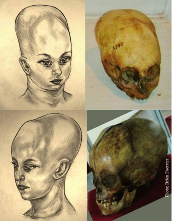 Infant skull from Cusco, Peru, and Infant/Child skull from Tiwanaku, Bolivia