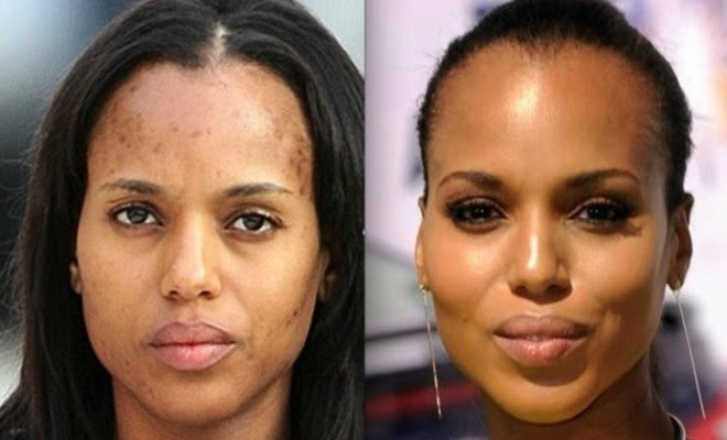 How to deal with skin discoloration and dark spots ...