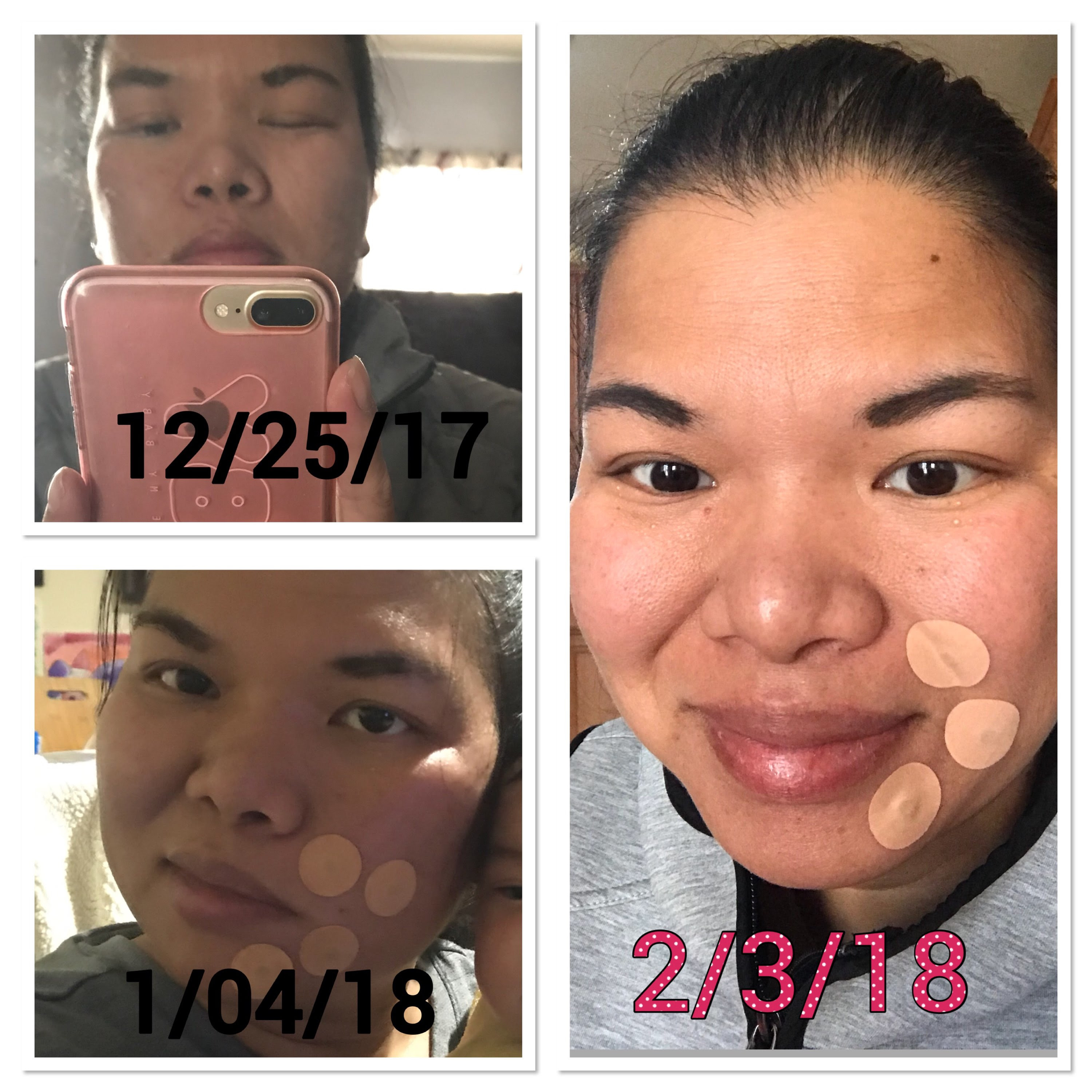 Testimonial My Bells Palsy Gone And I Can Smile Again
