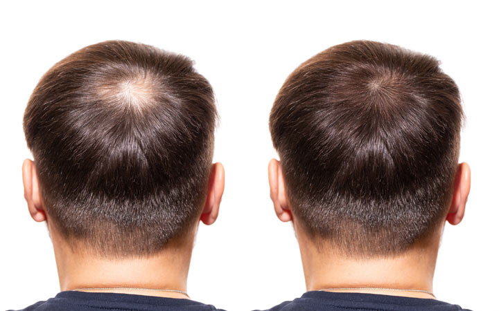 The Best Dht Blockers How They Can Combat Hair Loss Skinkraft