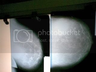 Breast absecss,Mammoghaphy