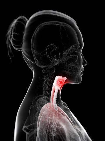 cancerous larynx