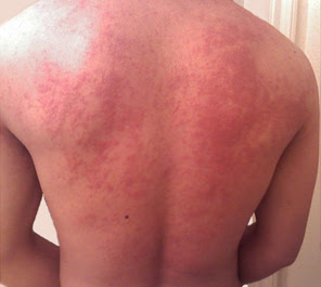 Ringworm Scabies Hives