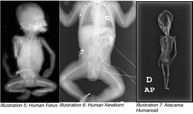 Kerangka ini dianggap sebagai bukti kehidupan asing Misteri Atacama Humanoid