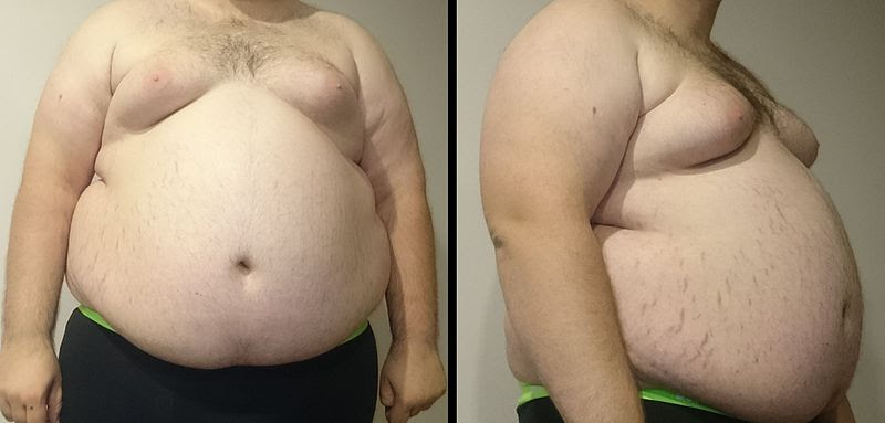 File:Obesity6.JPG