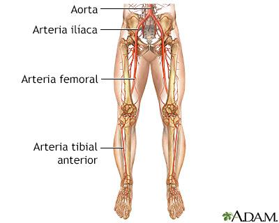 Arteriopatía Periférica En Las Piernas Adam Interactive