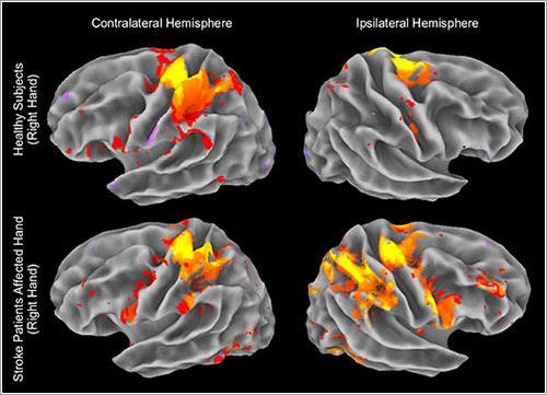 Fmri fMRI del movimiento de una mano