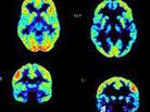 Fallon's brain scan