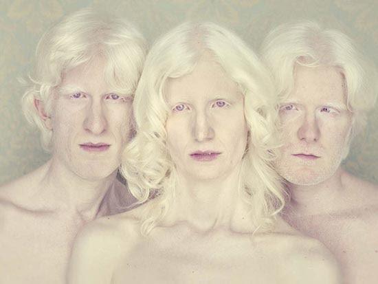 Albino (10)