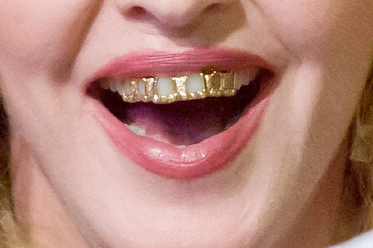 Oral Piercings And Teeth Grills Mark Osmond Dental Clinic