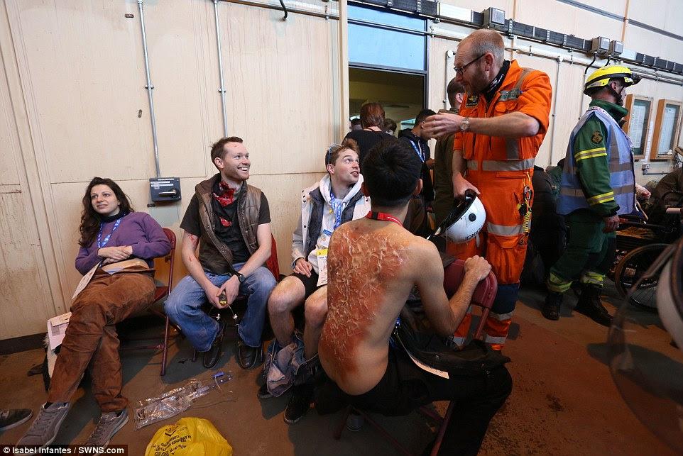 Πληγωμένος: Ηθοποιοί έχουν ζωντανή τραυματισμούς, συμπεριλαμβανομένων των εγκαυμάτων, όπως αυτή απεικονίζεται, ζωγραφισμένα στο σώμα τους για να κάνουν το σενάριο πιο ρεαλιστικό