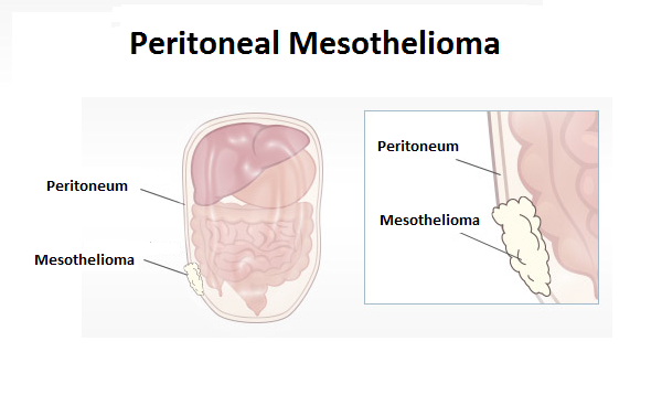 Mesothelioma  A Rarest Form of Cancer Now In India