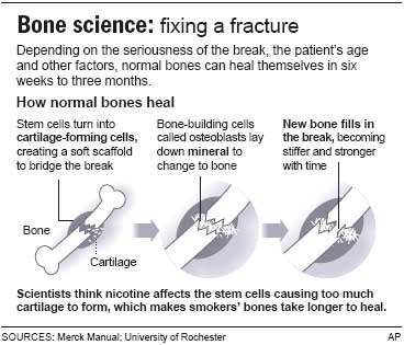 Quit Smoking For Faster Bone Healing Health Health Care More