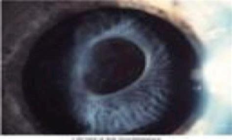 Sommering ring cataract   meddic