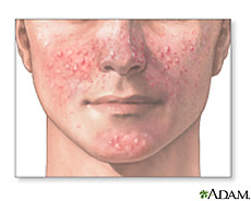 Illustration of facial acne