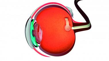 <p>Esquema de una prótesis de retina con estimuladores de grafeno para transmitir información del exterior a través del nervio óptico. / ICN2</p>