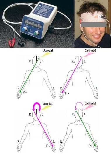 経頭蓋直流電気刺激で脳卒中元気
