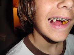 candy corn teeth