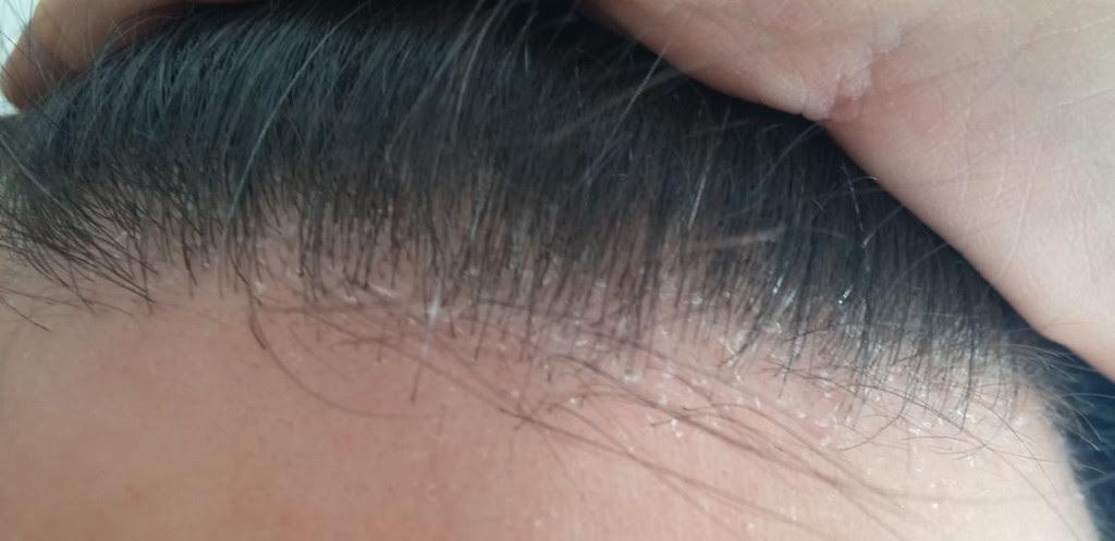 Dermatite Seborroica capelli e cuoio capelluto - dermatite seborroica del cuoio capelluto