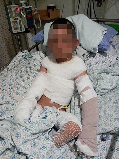 אחד הפצועים במתקפה, ילד בן 3. האב פצוע קשה, נמצא בתרדמת (צילום: חסן שעלאן)