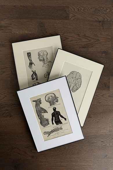 Vintage Medical Framed Print