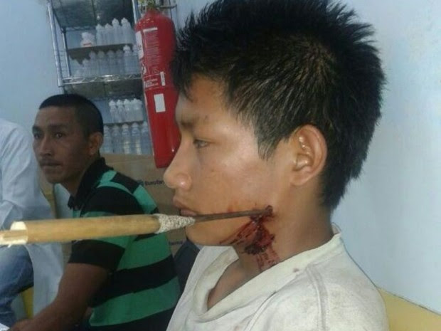 Indígena foi atingido com uma flechada na região do pescoço (Foto: Laudinei Sampaio/Arquivo Pessoal)