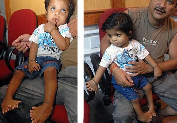Pequeno Akshat Saxen, de 1 ano.