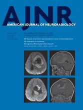 American Journal of Neuroradiology: 40 (11)