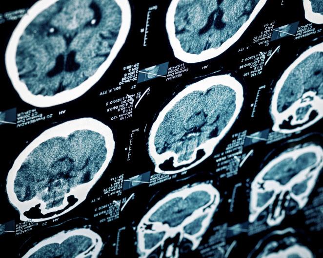 A stroke occurs when the blood supply to the brain is blocked or when a blood vessel in the brain ruptures, causing brain tissue to die.