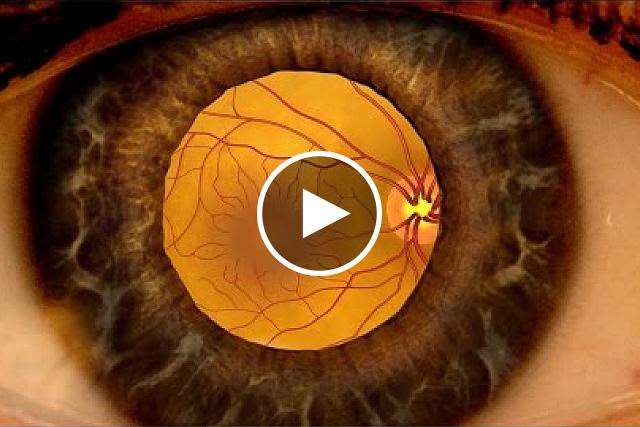 View an NEI video about how diabetic retinopathy can be detected through a comprehensive dilated eye exam