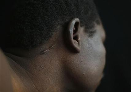 Hassan Mekki, a 32-year-old Sudanese migrant, shows a scar on his neck in Athens December 5, 2012. REUTERS-Yannis Behrakis