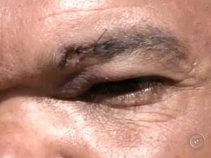 Anão deu cinco pontos no supercílios (Foto: Reprodução / TV TEM)