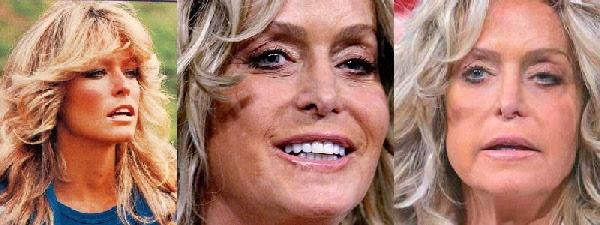 Disastres de cirurgia plástica de celebridades - Farrah Fawcett