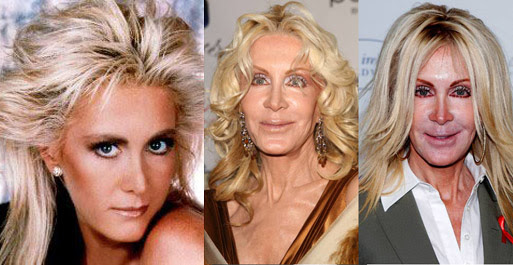 Disastres de cirurgia plástica de celebridades - Joan Van Ark
