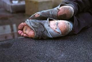 [Photo of rag-covered feet]