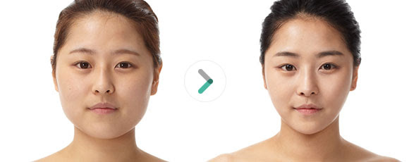 What You Should Know About V Line Facial Contouring Surgerymedisetter