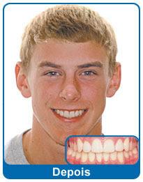 antes-e-depois-aparelho-dentario-10