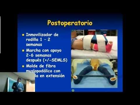 Colegio mexicano de ortopedia y traumatolog a manejo for W de porter ortopedia