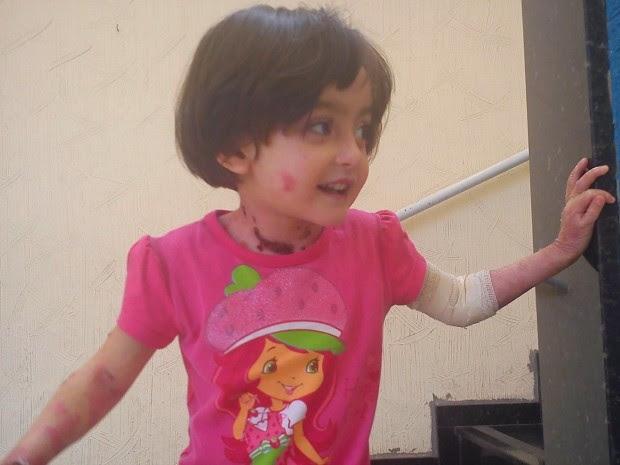 Raissa Victória tem 4 anos e sofre de epidermólise bolhosa (Foto: Arquivo pessoal)