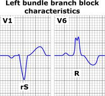 Left bundle branch block ECG characteristics Bloqueio do Ramo Esquerdo ( BRE )   É grave? Mata? Saiba Tudo!
