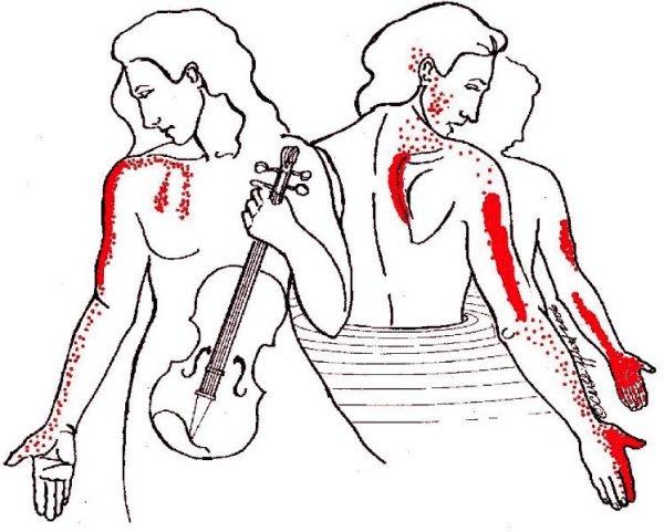 Scalene-Pain