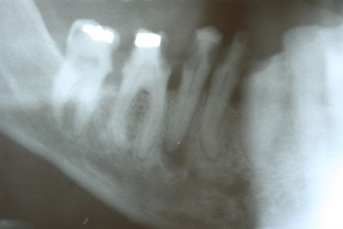 Flap's Dentistry Blog: The Daily Extraction: Lower Right ...