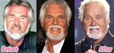 Celebrities πριν και μετά την πλαστική