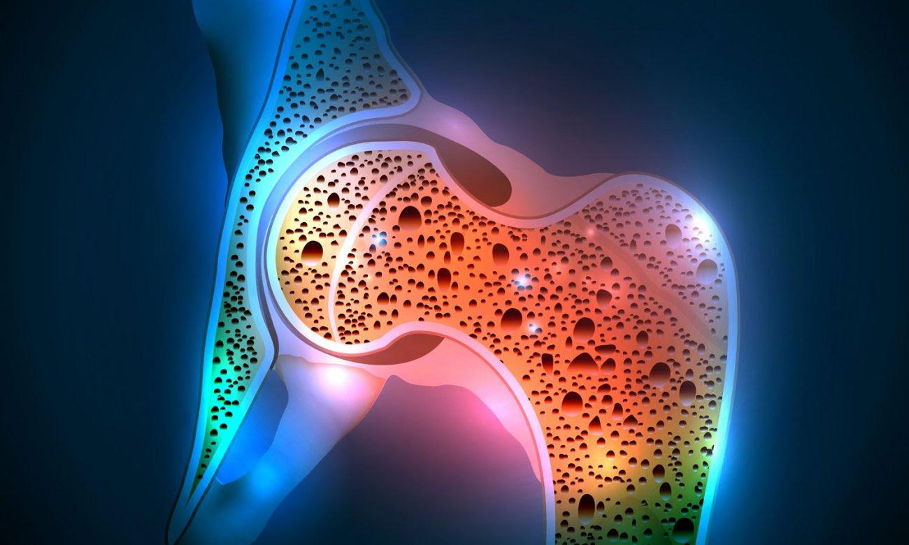 osteoporosis yogurt 1